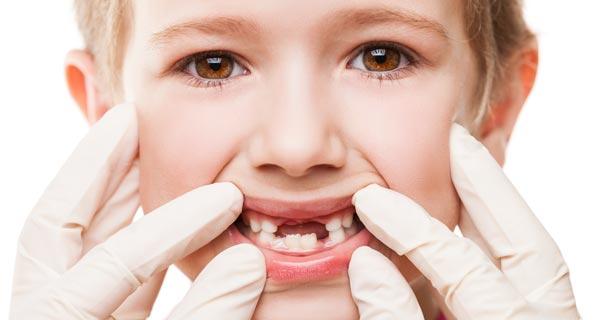 Çocuğunuzun Ağız Sağlığı ve Süt Dişleri